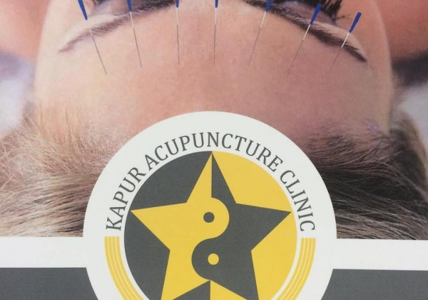 Acupuncture – Why I tried it & did it work?!